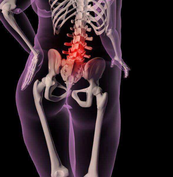 Illustrasjon av skjellett med smertemarkering i ryggrad