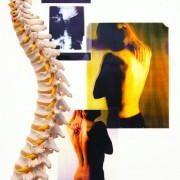 Collage av øntgenbilde, smertebilder og ryggrad
