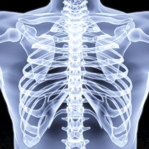 Det er normalt for en med Bekhterevs sykdom å få tilstivning og smerter i brystkassen og ribbena. Foto: Dimdimich/Dreamstime.com