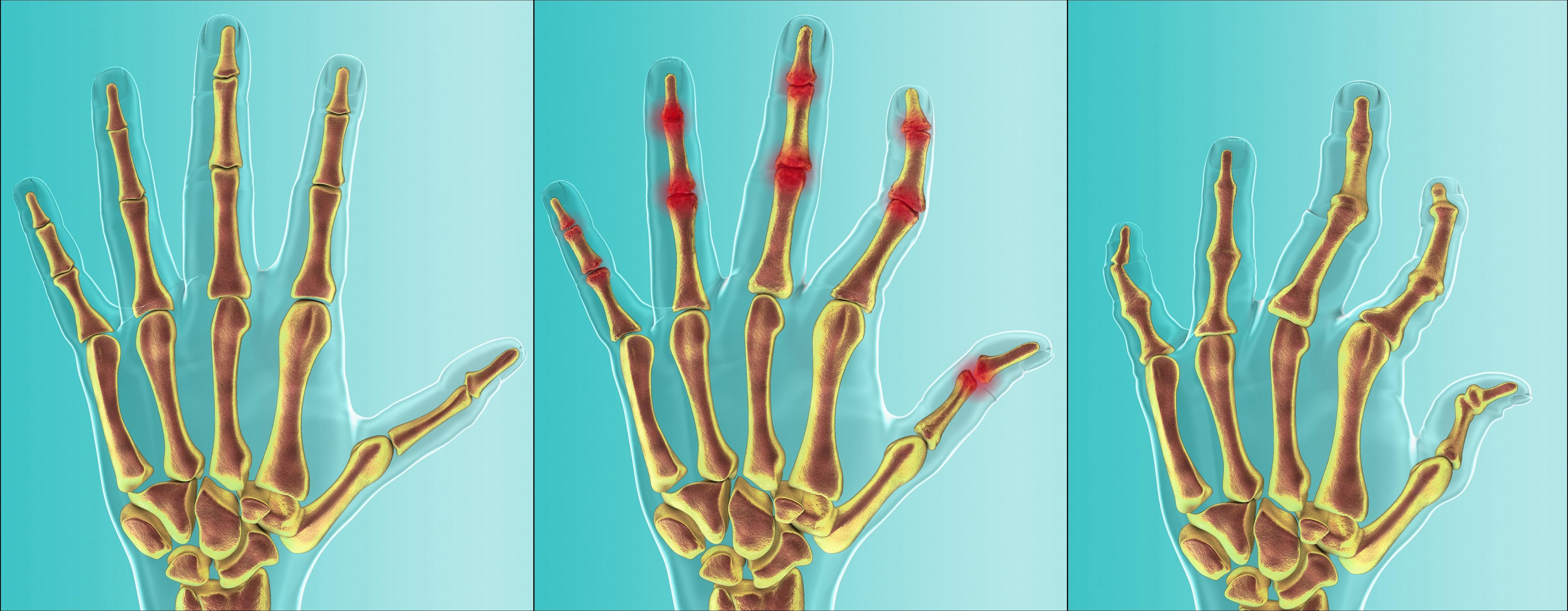 biologiske medisiner revmatisme