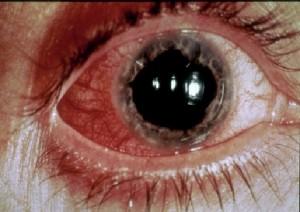bilde av et rødt og betent øye
