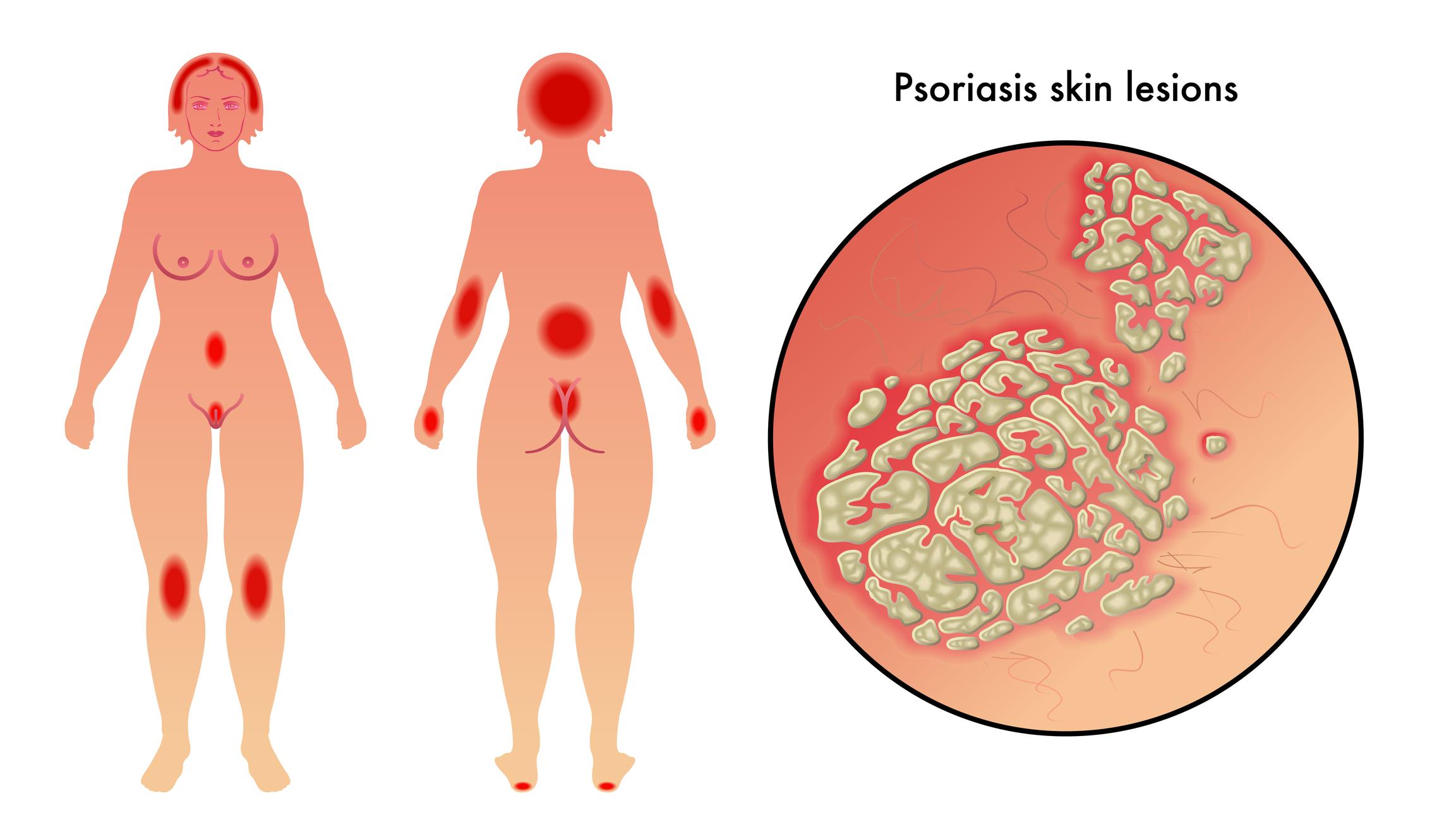 kan psoriasis smitte