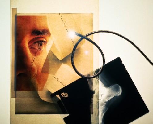 Sammensatt bilde av røntgen av fot, øye og EKG-utskrift