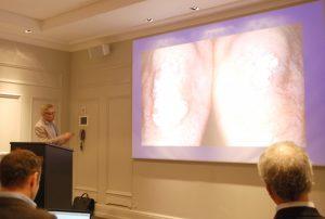 Mann hlder foredrag med lysbilde av knær fulle av psoriasis
