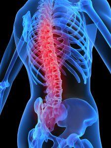 3D-tegning av skjelett med rødt på smertefull ryggrad