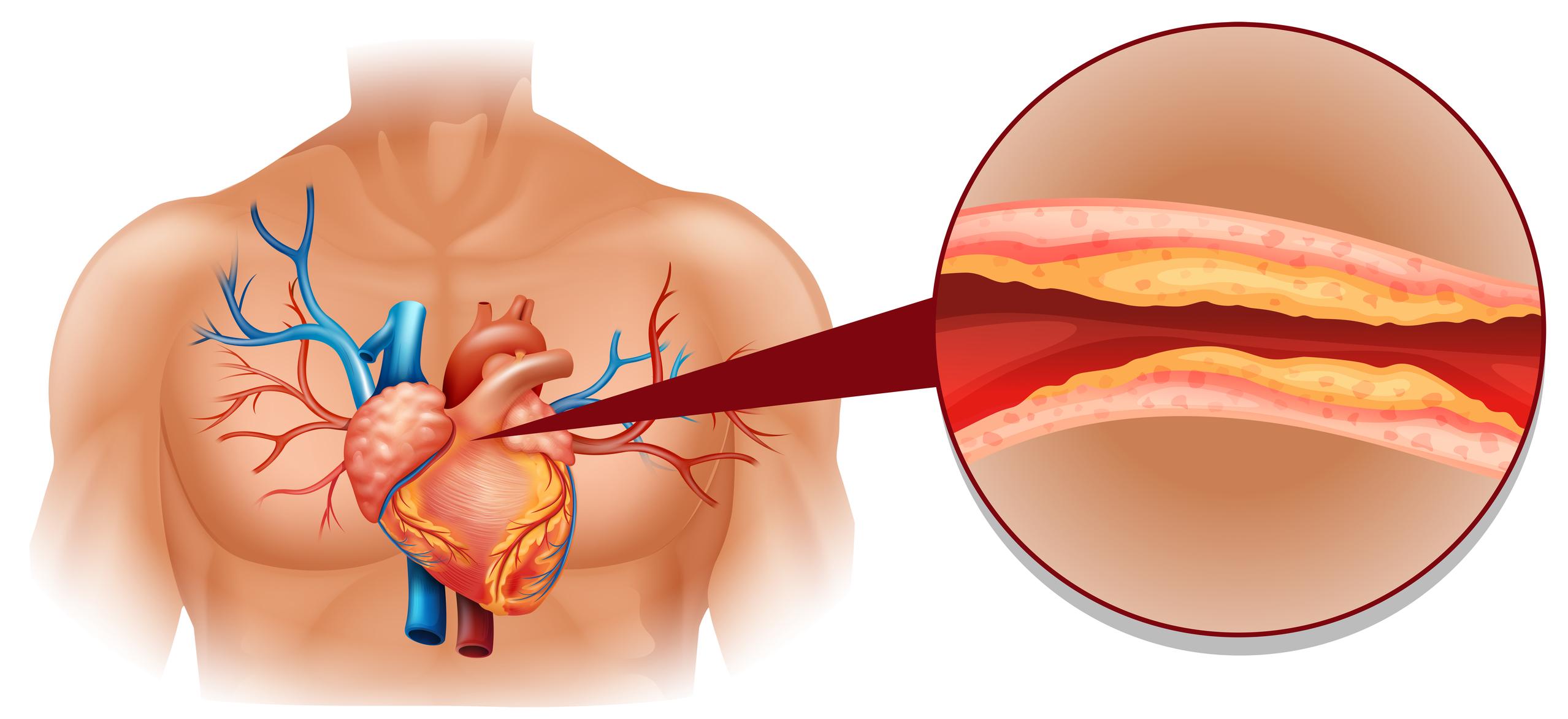 Tegning av overkropp med hjerte, utfdrag med åre med kolesterolplakk i åra