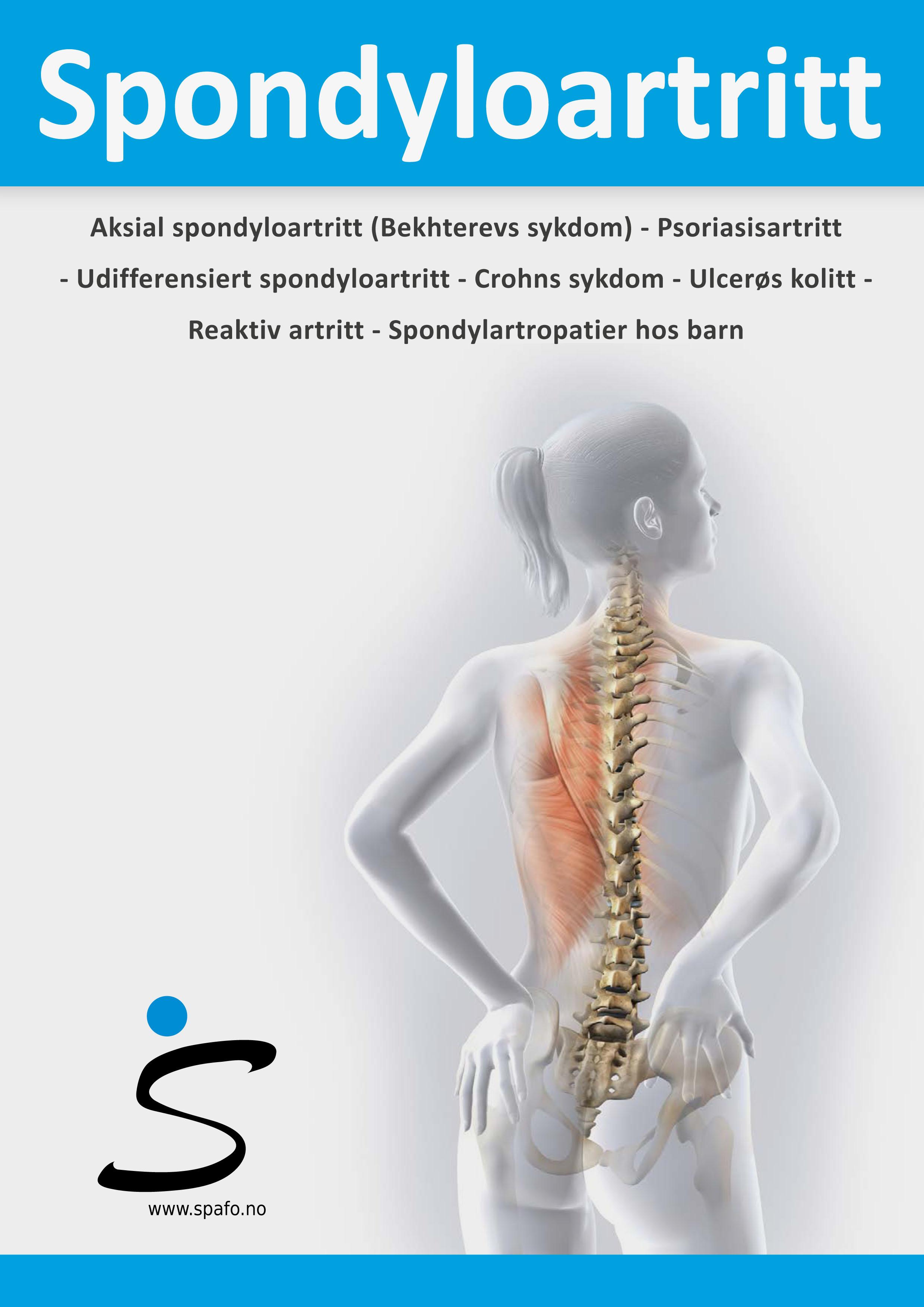 Symptomer Psoriasisartritt