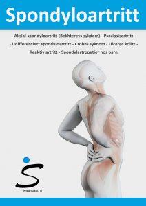 Forsiden på informasjonsheftet om spondyloartritt med tegning av en mann