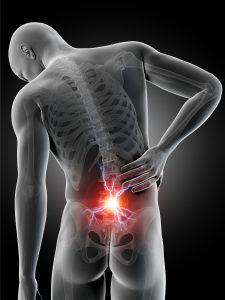 Grå tegning av en 3D-mann med lysende smertesenter i korsryggen