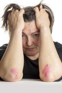 Dame med sitter med hodet i hendene og viser frem psoriasis på albuene