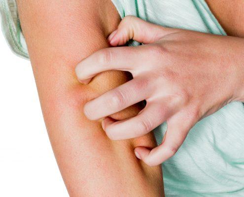 Dame klør intenst på armen