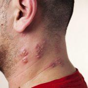 Mann med helvetesild på hals og nakke