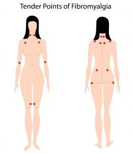 Tegning med trykkømme punkter ved fibromyalgi