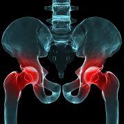 Illustrasjon av hofteledd med røde smertemerker