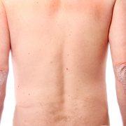 Mann med psoriasis på albuene
