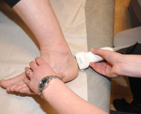 Ultralydundersøkelse av en hæl