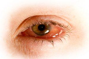 Rødt og betent øye