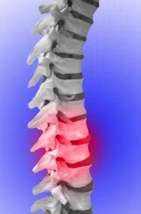 Illustrasjon av ryggrad med smertefulle deler
