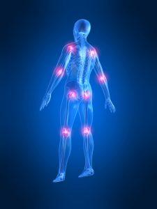 3D-figur av mann med gjennomsiktig skjelett og smertepunkter på flere ledd