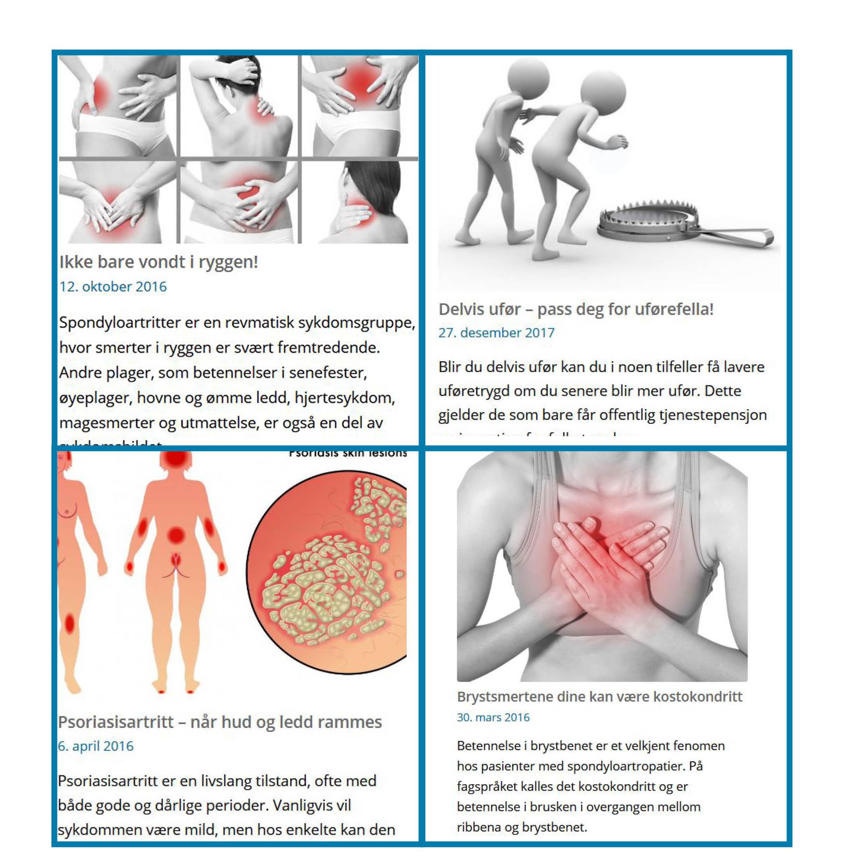 Collage med skjermdump fra noen av de mest leste artiklene på spondylitten.no i 2020