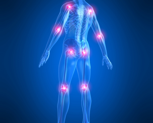 Blå gjennomsiktig figur med smertepunkter på flere ledd i kroppen