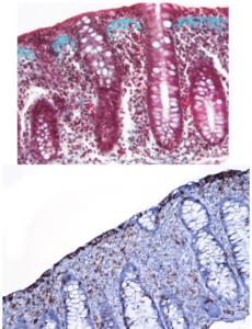 Mikroskopbilde av to varianter av mikroskopisk kolitt