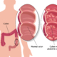 Illustrasjon med utsnitt av tykktarm med betennelse og normal tykktarm